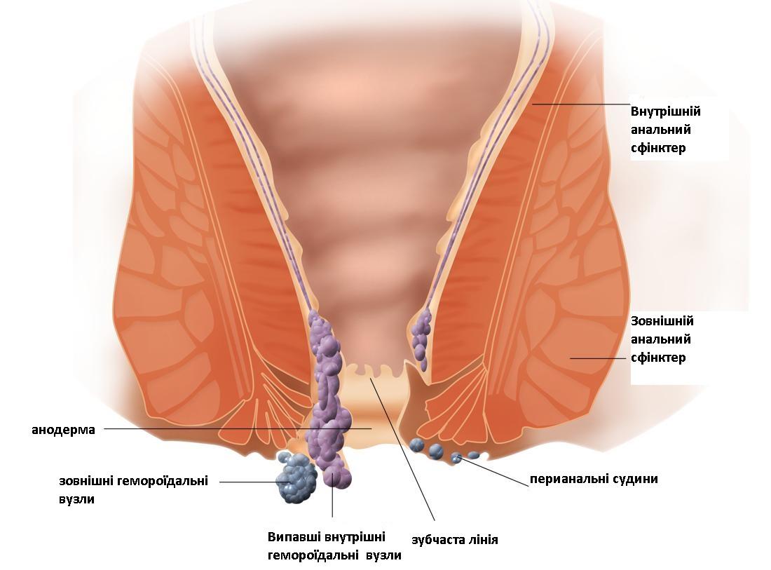 геморой анатомія
