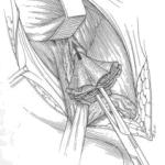 лечение паховой грыжи сеткой