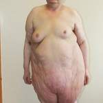 Ожирение-синдром Пиквика3