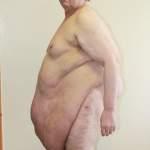 Ожирение-синдром Пиквика2