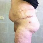 грыжа вентральная ожирение 4 ст вид после операции