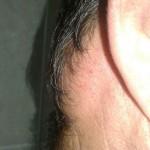 Синдром Маделунга липома поползла на приушную часть головы