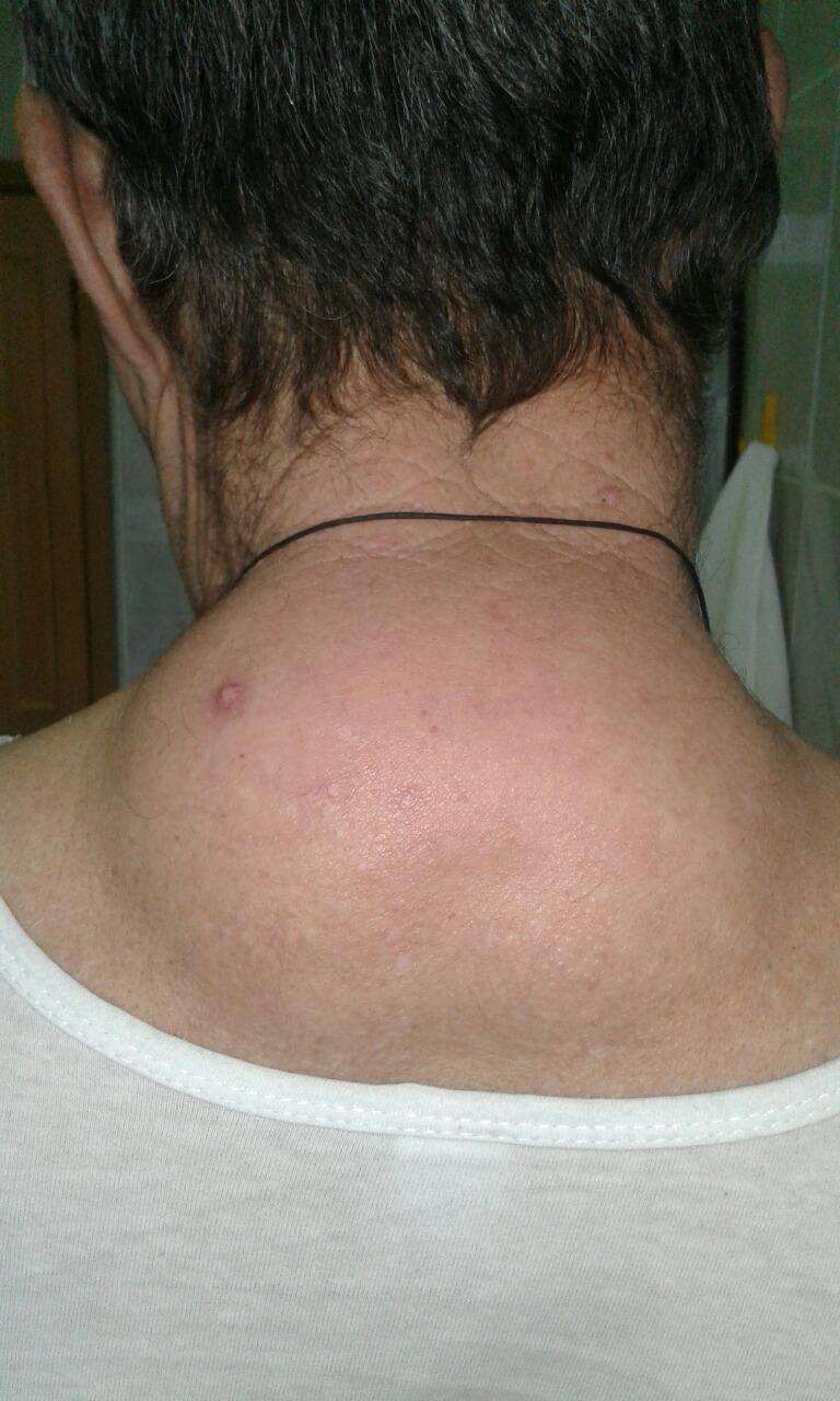 Паховая липома прооперирована пациент находится на реабилитации объем липомы 4 литра жировой ткани