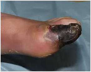 Осложнение вросшего ногтя
