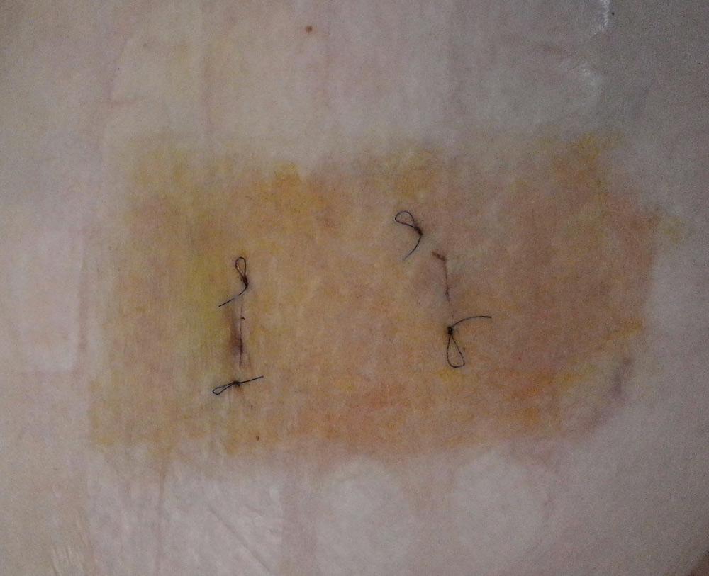 косметический шов при удалении липом