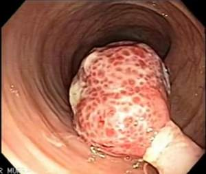 колоноскопия полип толстой кишки