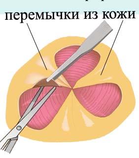 Мостики из кожи которые предотвращают сужение анального канала.
